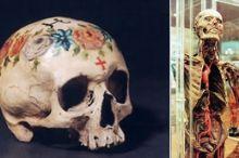 Anatomisches Museum Innsbruck